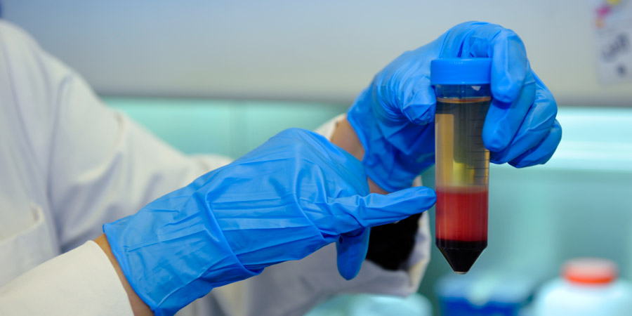 La Fondation d'entreprise Ramsay Générale de Santé réaffirme son engagement dans la recherche scientifique issue du sang de cordon ombilical