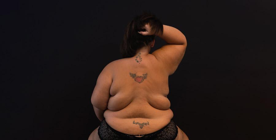 La Clinique de la Sauvegarde à Lyon s'associe au photographe Bertrand Perret pour accompagner des patients obèses en démarche de perte de poids